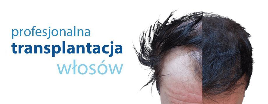 Przeszczep wlosow Warszawa