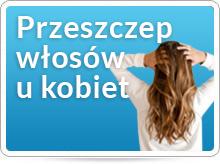 Przeszczep włosów u kobiet