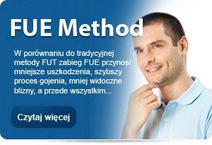 FUE Method - transplantacja wlosow