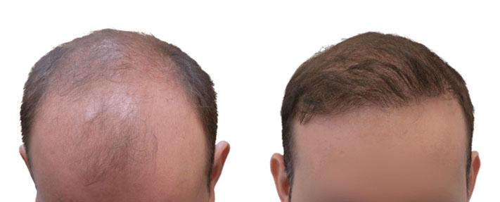 Rezultaty po przeszczepie włosów